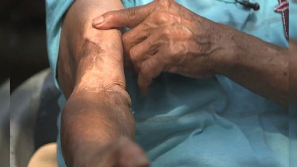 dolor muscular por picadura de araña