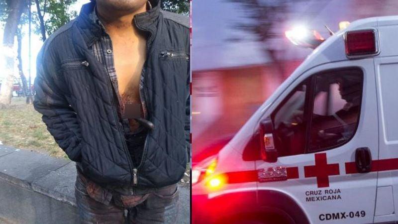 FOTO: Hombre camina por calles con cuchillo clavado y causa temor en CDMX