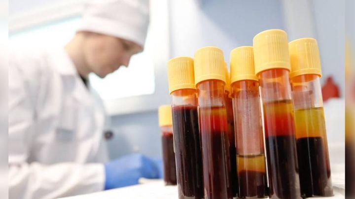 México participa en ensayo mundial para obtener la vacuna que previene el VIH