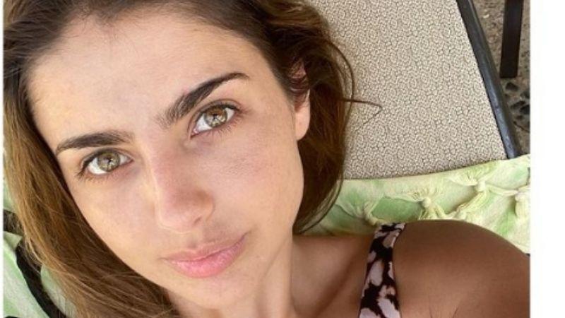 ¿Qué se hizo en la cara? Michelle Renaud conmociona Instagram al aparecer irreconocible a sus 32 años