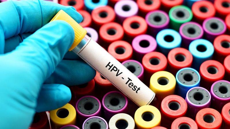 Pandemia por COVID-19 paraliza detección de casos de VPH en Cajeme
