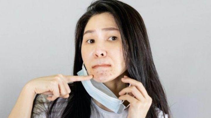 Así es como se pueden combatir brotes de acné provocados por el cubrebocas