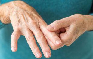 ¿Sufre artritis reumatoide? Estos alimentos podrían ayudan a combatir el dolor