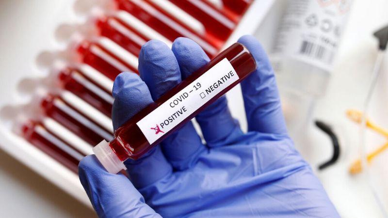 ¿Por qué los contagios de Covid-19 aumentan si ya existe la vacuna? Expertos responden