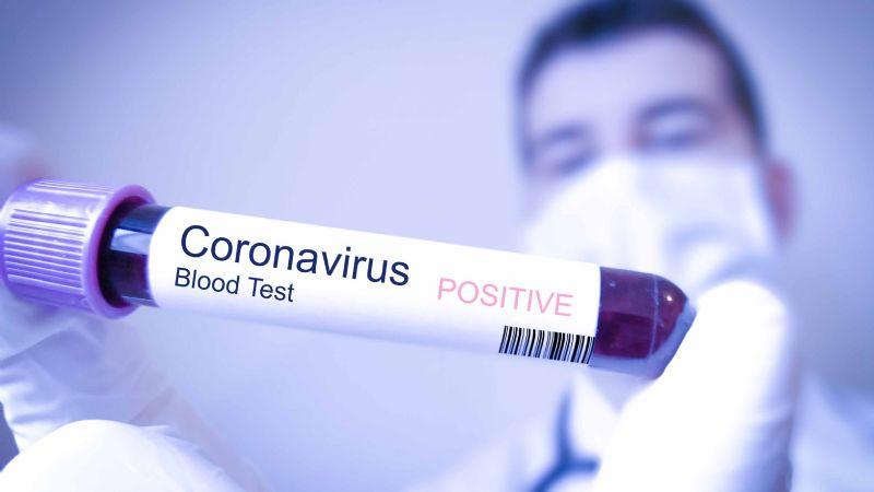 Expertos en salud investigan el uso de medicamentos ya existentes para tratar el Covid-19