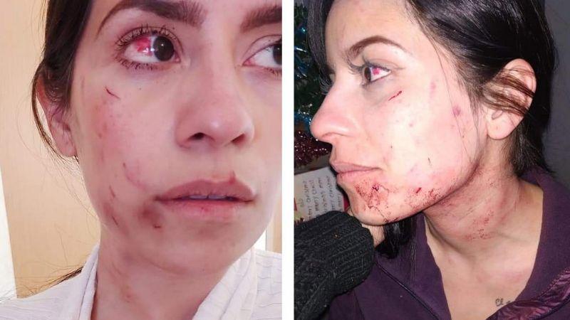 Policía de Coahuila y su esposa propinan brutal golpiza a mujer frente a sus hijos