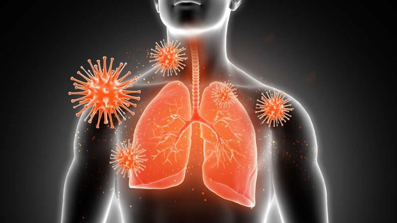 Revelan que el Covid-19 provoca mayores daños en los pulmones que fumar cigarro