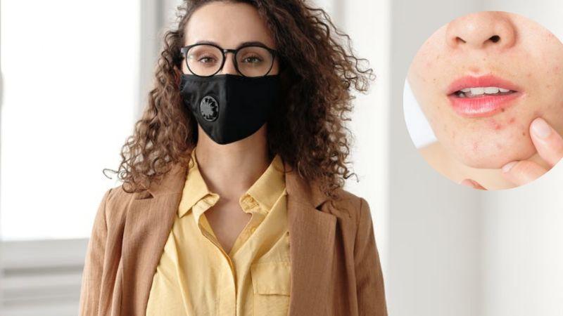 ¡Detén el daño! Estos consejos te ayudarán a aliviar el acné provocado por el cubrebocas