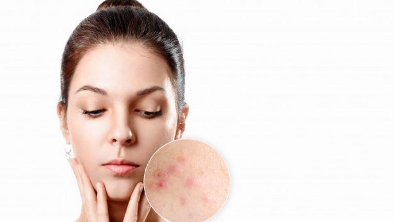 ¿Mucho acné? El estrés podría ser la principal causa de que tu piel tenga problemas