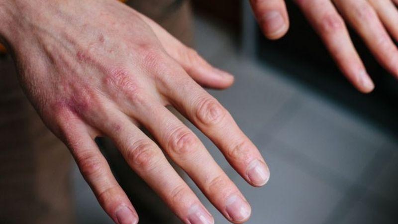 Covid-19: Tener manchas en la piel podría ser un síntoma asociado al coronavirus