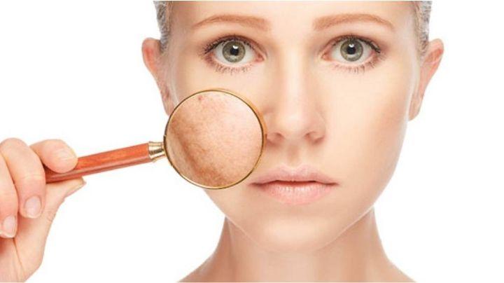 Mascarilla completamente efectiva para eliminar las terribles manchas de la piel
