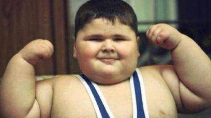 """Muere a los 21 años el joven quien fue considerado """"El niño con más peso del mundo"""""""