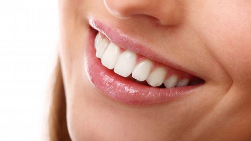 ¡Sonrisa de comercial! Entérate de los alimentos que blanquearán tus dientes
