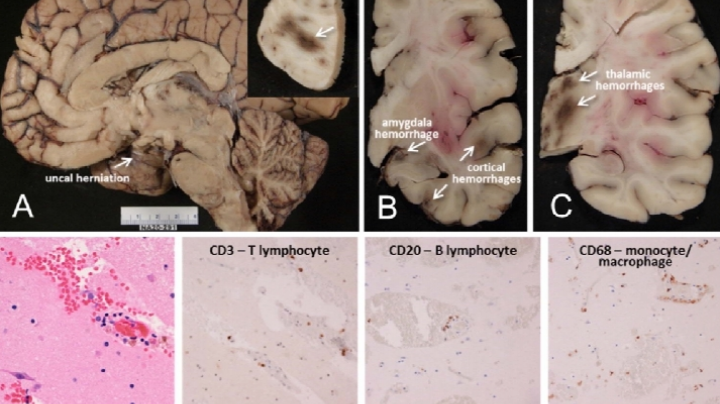 Covid-19: Revelan que el virus podría llegar al cerebro a través de la nariz y quedarse ahí