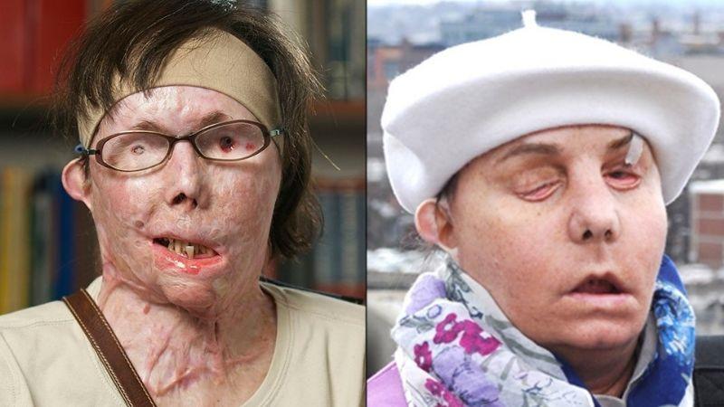 La increíble transformación de Carmen tras un trasplante de cara; la atacaron con ácido