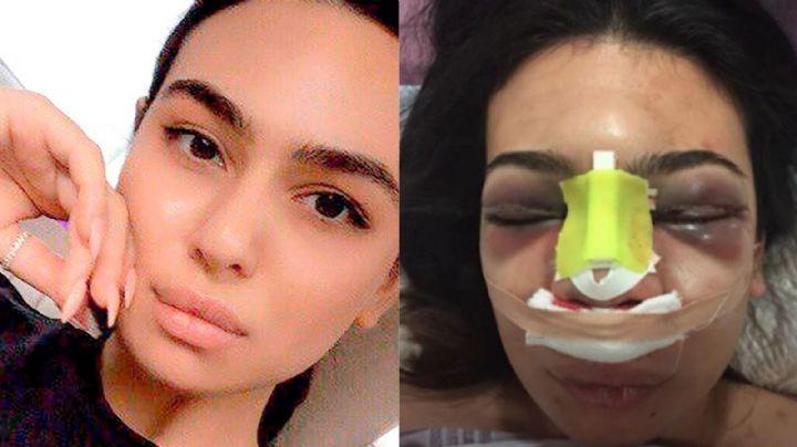 FOTOS: Karolina se sometió a una cirugía de nariz y casi pierde la vida; así se ve ahora