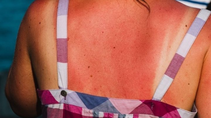 Conoce todo sobre el cáncer de piel y protégete durante esta primavera para evitarlo