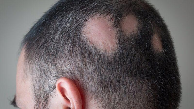 ¡Desconcertante hecho! El Covid-19 provocaría terrible pérdida de cabello en los pacientes