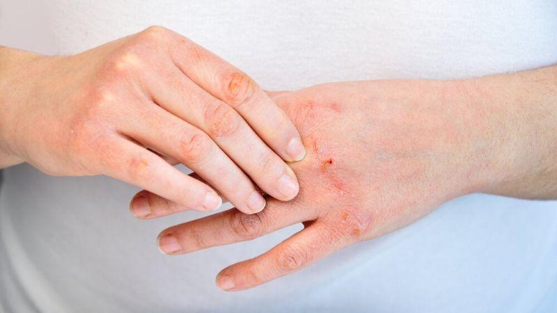 ¿Tienes las manos secas? Estas son las enfermedades que causan este malestar
