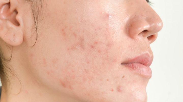 Impactante: Esta es la razón por la que tienes acné durante tu periodo menstrual
