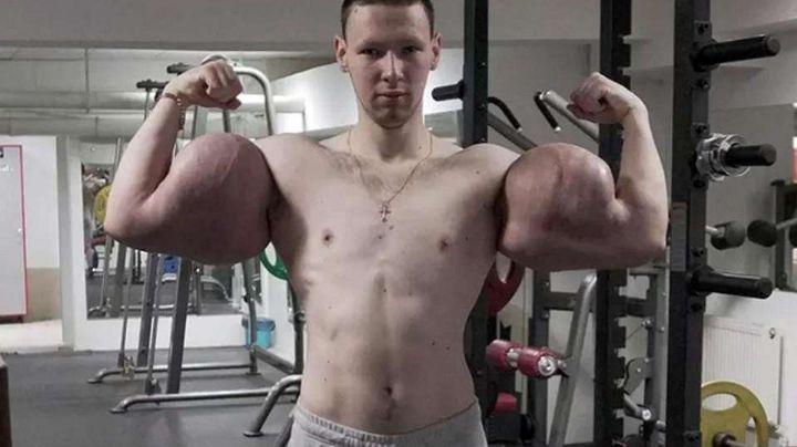 'Popeye': Joven ruso podría perder los brazos por inyectarse vaselina en los bíceps