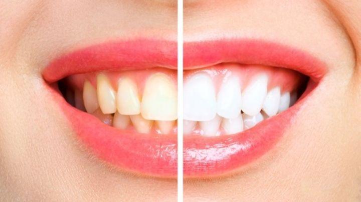 Luce una sonrisa de comercial al eliminar estos alimentos que manchan tus dientes