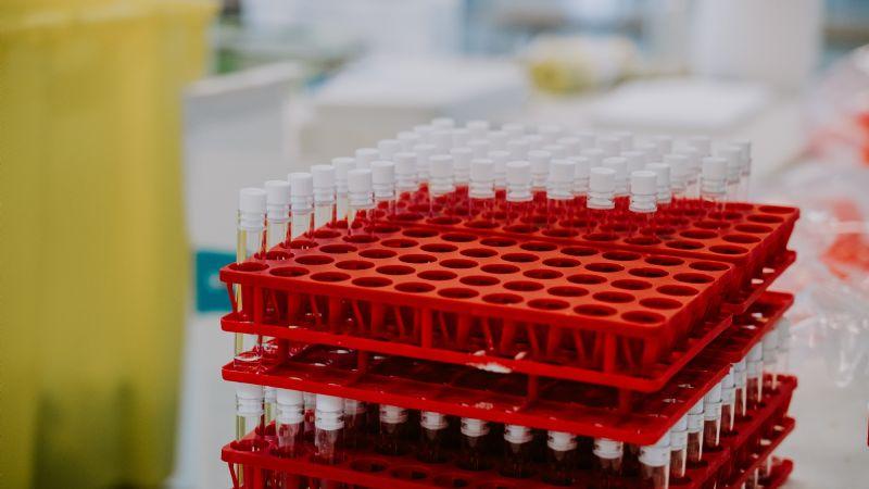 Covid-19: Tras 383 días en pandemia, México crea la vacuna 'Patria'; conoce cómo es el fármaco