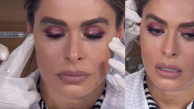 """""""La están desfigurando"""": Se comen viva a Galilea Montijo por inyectarse """"vitaminas"""" en la cara"""