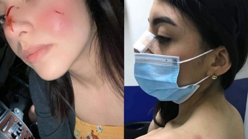 FOTOS: Mujer defiende al asesino de 'Rodolfo Corazón'; dijo que el perro inició la agresión
