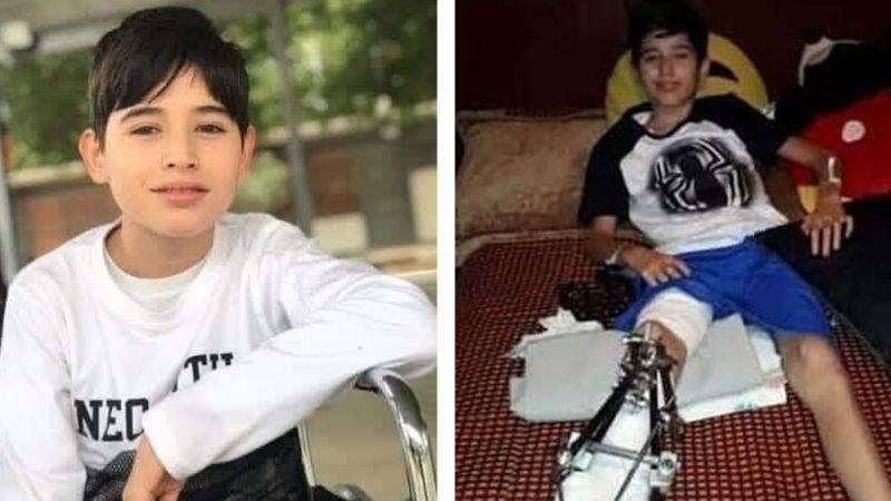 Personal de Sedena arrolló al niño Jorge mientras perseguían a motociclista; le amputarán la pierna
