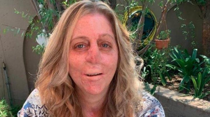 Shaninlea Visser perdió sus extremidades, labios y nariz por una mordida de mangosta
