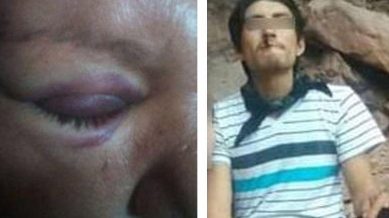 Indignante: Hombre adicto ataca a pedradas a su suegra y le causa dolorosa lesión en un ojo