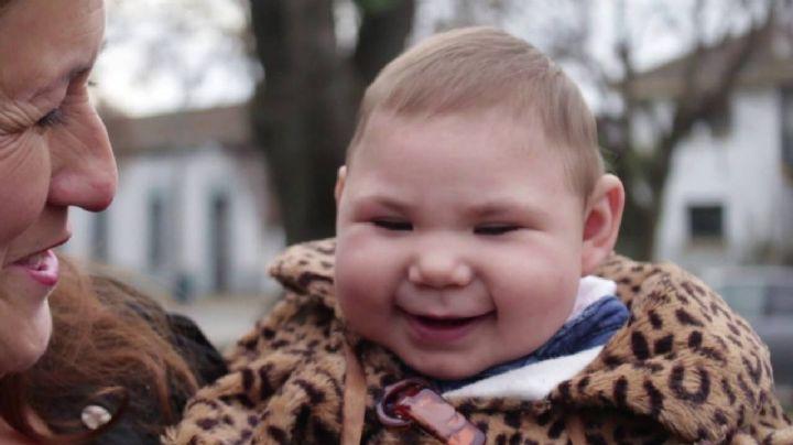 ¡Aterrador! Descubre qué es la microcefalia y por qué es peligrosa para los recién nacidos