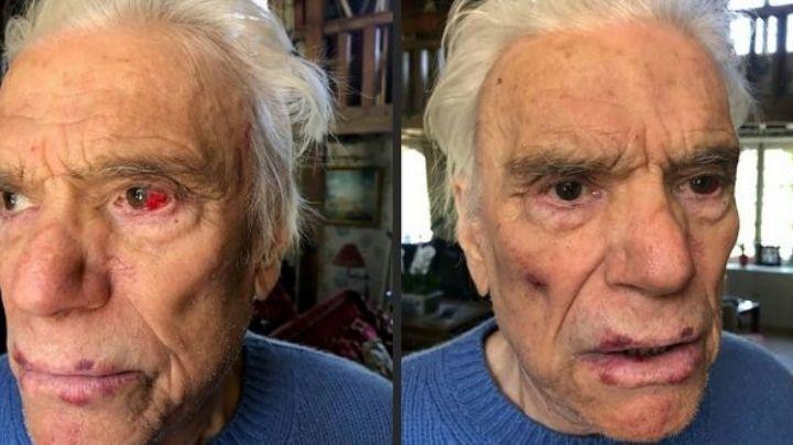 Brutal ataque: Golpean y asaltan a una pareja de ancianos millonarios en su casa