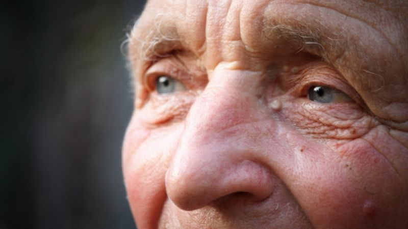 ¡No solo es el Covid-19! El Alzheimer también podría causar pérdida de olfato