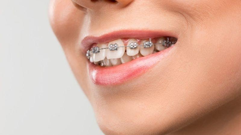 Ten una sonrisa de envidia al cuidar correctamente tu ortodoncia durante el confinamiento