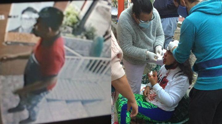 Mujer sangra al ser golpeada con una piedra; un ladrón la atacó para quitarle su celular