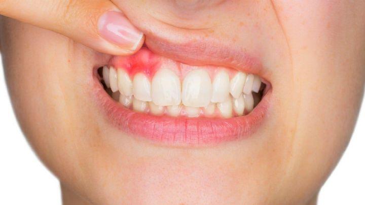 ¿Te sangran las encías? Ten cuidado, podrías tener gingivitis; estos son los síntomas