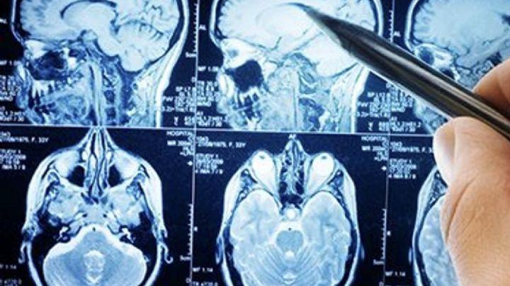 El 80% de los hospitalizados por Covid-19 sufren problemas neurológicos según estudio