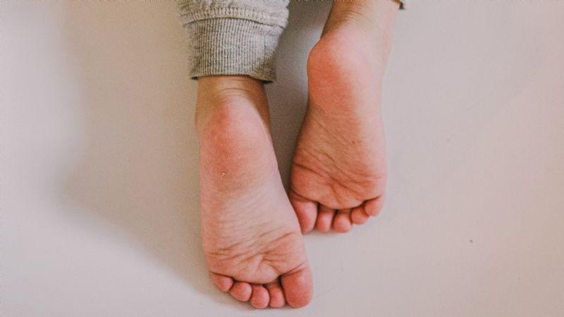 ¡Tenebroso! Pies-Covid: El nuevo síntoma que genera hinchazón, hemorragias y ardor