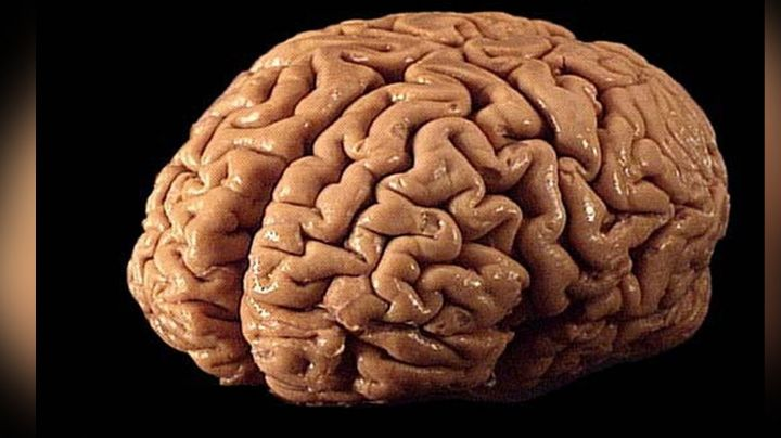 Mal funcionamiento del cerebro podría generar distintas enfermedades neurológicas