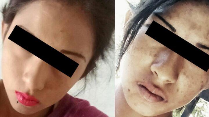Amarrada y golpeada: Así fue el brutal asesinato de Karla; tenía 19 años y era adicta