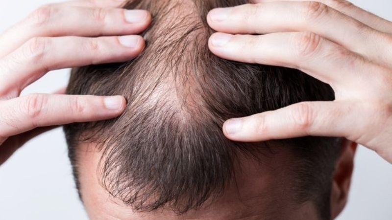 Inimaginable: Hombres con calvicie podrían ser vulnerables ante el Covid-19