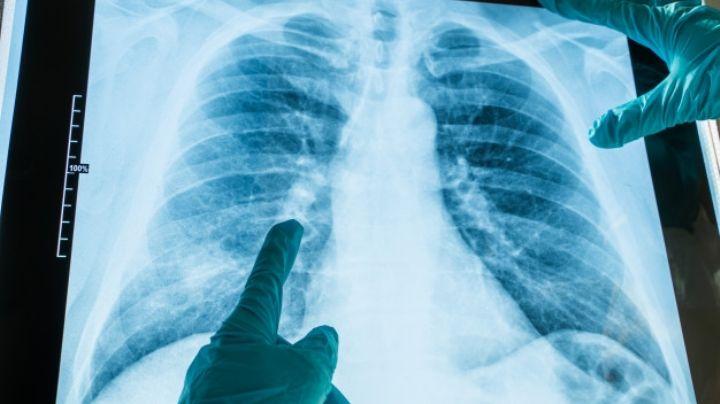 Covid-19: La neumonía bilateral sería la secuela más temida causada por el virus
