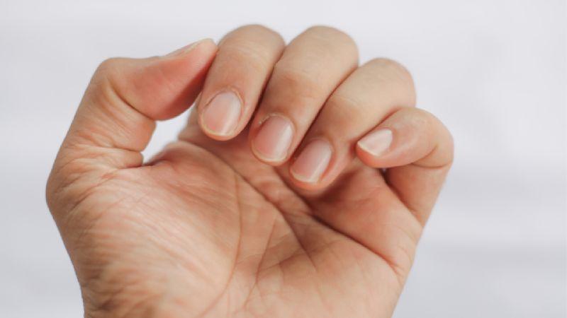 Uñas rojas: Secuela dejada por el coronavirus en pacientes asintomáticos