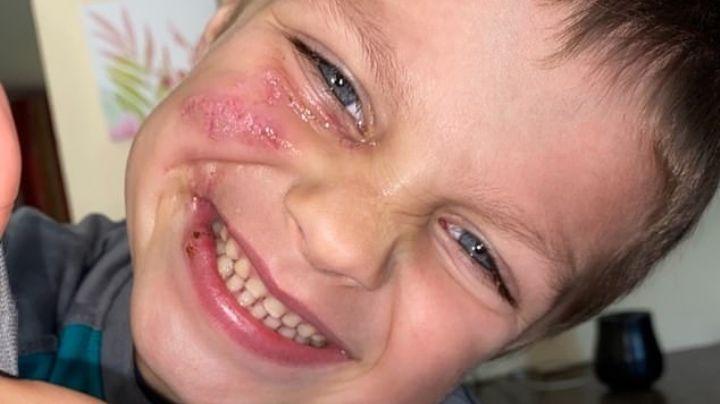 Niño de 5 años termina desfigurado tras ser brutalmente atacado por el perro de su niñera