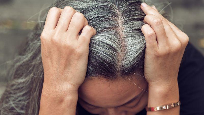 La ciencia lo confirma: El estrés provocaría canas, pero es un efecto reversible