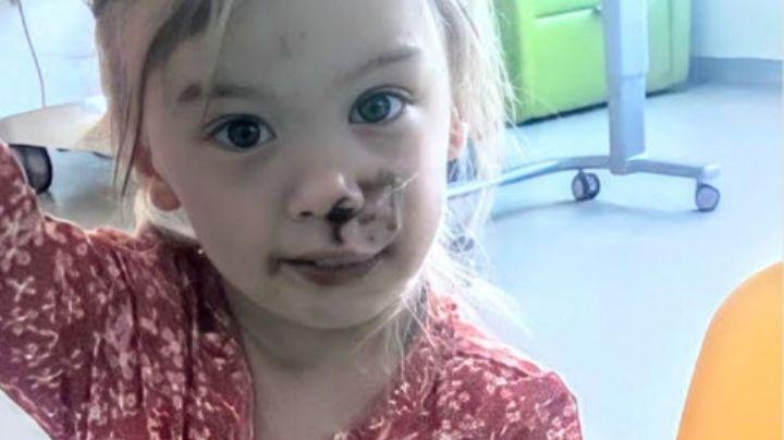 Marcada de por vida: Niña de 2 años es brutalmente mordida en la cara por un perro