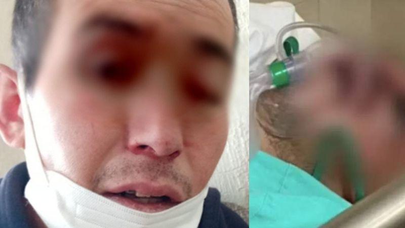 ¡Alerta en México! Muere Gregorio, primer caso post Covid-19 de hongo negro; tenía 34 años