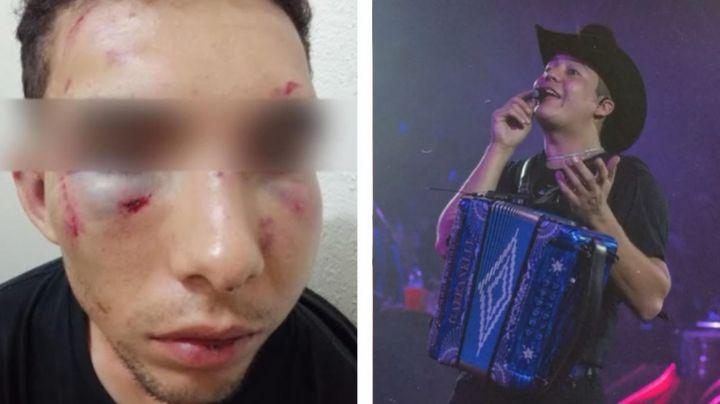 Remmy Valenzuela: Lo denuncian en la FGE por azotar a mujer con cable y brutal golpiza a su primo